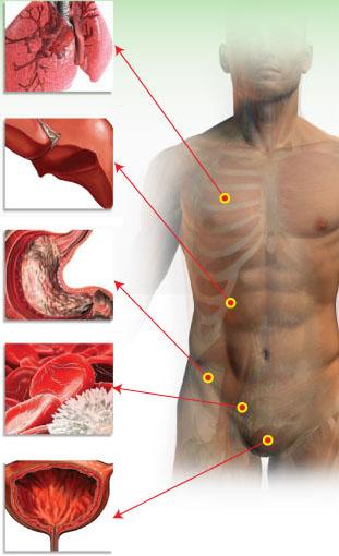 Накополение шлаков и токсинов в организме человека