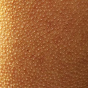 рука с гусиной кожей